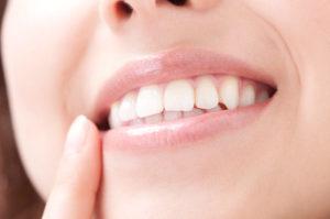 歯の「負の連鎖」を防ぎたい